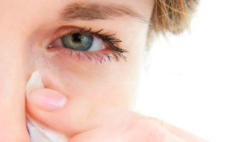 Болит внутренний уголок глаза