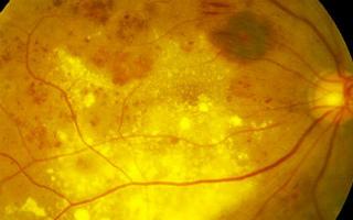 Фоновая ретинопатия и ретинальные сосудистые изменения ...