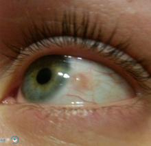 Киста конъюнктивы глаза лечение