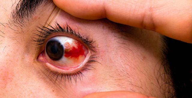Красный глаз после удара чем лечить