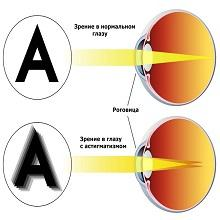Метод восстановления зрения видеолекция