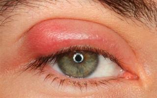 Заболевания век: абсцесс, флегмона