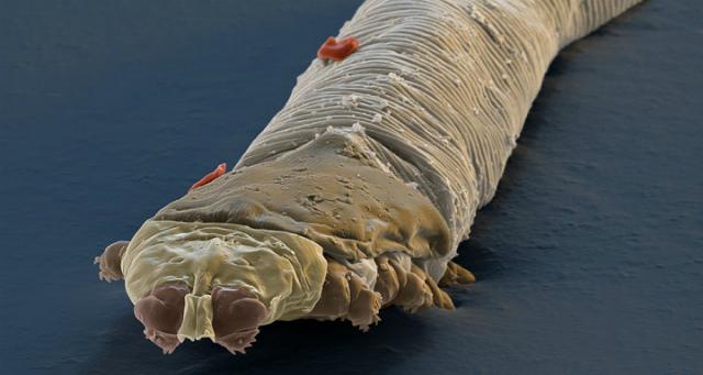 лечение глаз от паразитов