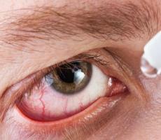 Осложнения при ношении контактных линз