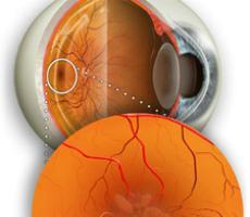 Отек сетчатки глаза: причины и лечение