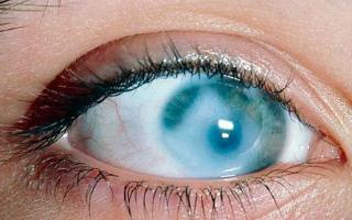 Помутнение роговицы глаза у человека