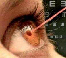 Ограничения и противопоказания после лазерной коррекции зрения