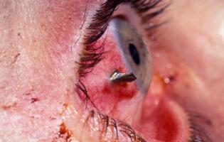 Проникающие ранения глаза