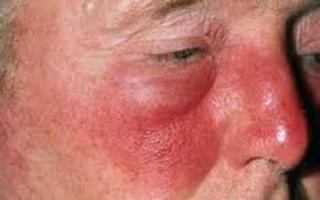 Заболевания век: рожистое воспаление