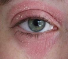 Шелушение и покраснение вокруг глаз-961 - Московская офтальмология
