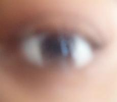 Причины и лечение тумана в глазах