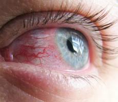 Симптомы воспаления глазного яблока