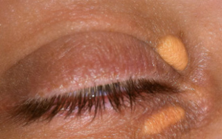 Желтые пятна на веках глаз: причины и лечение