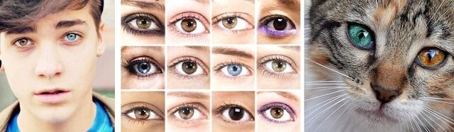 Глаза разного цвета у людей