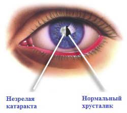 Незрелая катаракта-930 - Московская офтальмология