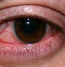 Кератит роговицы глаза