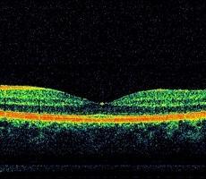 Оптическая когерентная томография