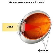 Смешанный астигматизм глаз