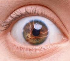Вспышки света в глазах